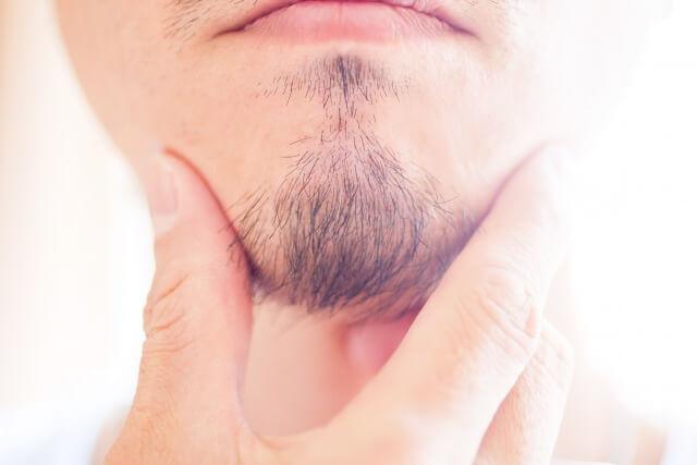 デザインひげ脱毛