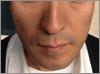 1 1 - ひげ脱毛の体験での口コミ情報5