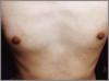 8bb996d192e96d1 - メンズ脱毛脱毛の体験での口コミ情報13
