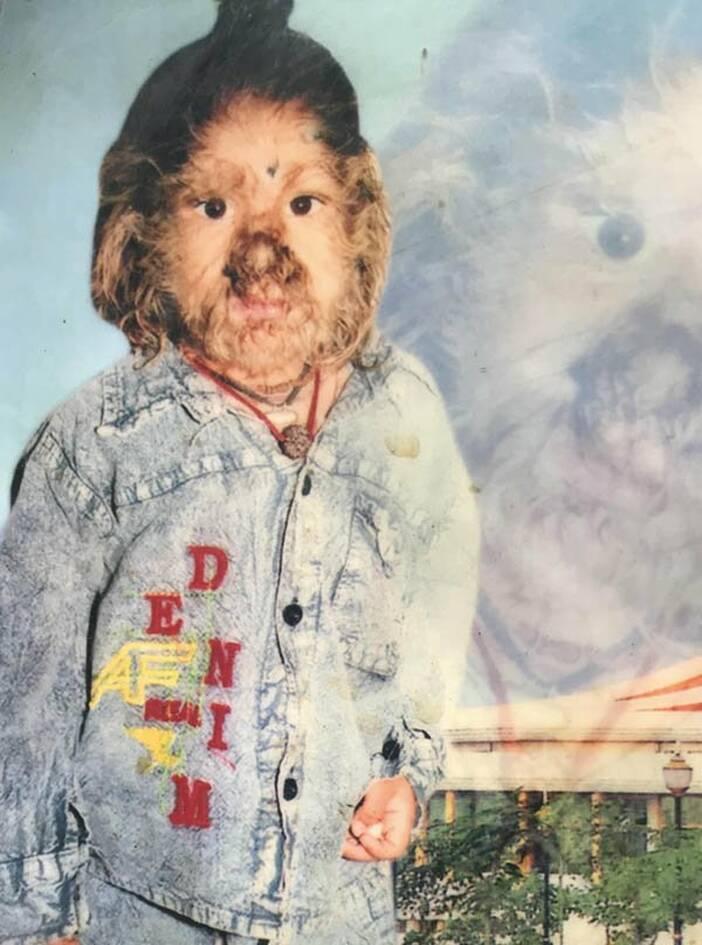 Το παιδί-λυκάνθρωπος