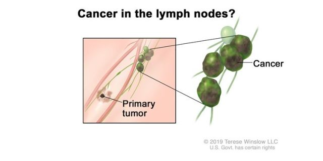 Melanoma staging (lymph node involvement); drawing shows cancer that has spread from the primary tumor to the lymph nodes.