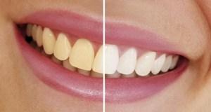 10 truques caseiros para eliminar manchas nos dentes