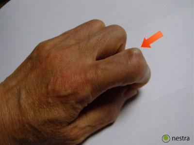 指の関節2