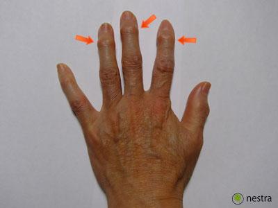指の関節1