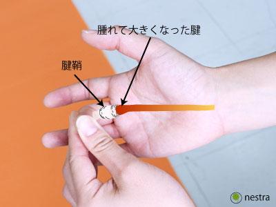 指の曲げ伸ばしばね指