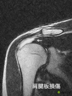 腱板MRI