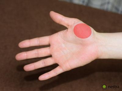 手根管症候群検査母指球