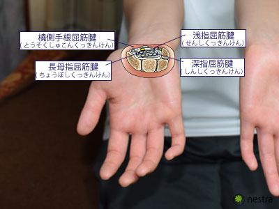 手根管症候群1筋肉