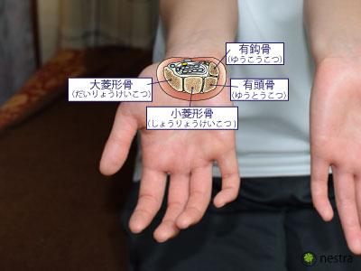 手根管症候群1骨