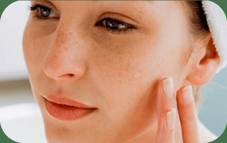 ¿Mi piel es sensible?