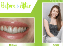 Professional Teeth Whitening - Nebraska Family Dentistry