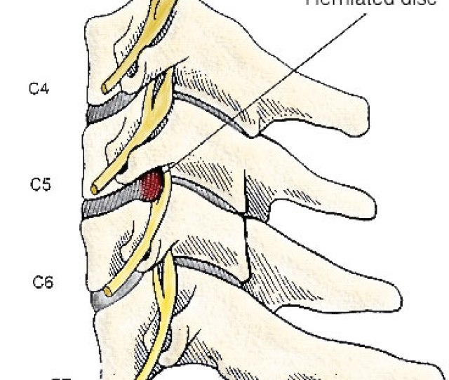 Click To Enlarge Image This Illustration Is A Side View Of The Cervical Spine Neck Here You Can See The Vertebral Bodies With The Discs In The Front Of