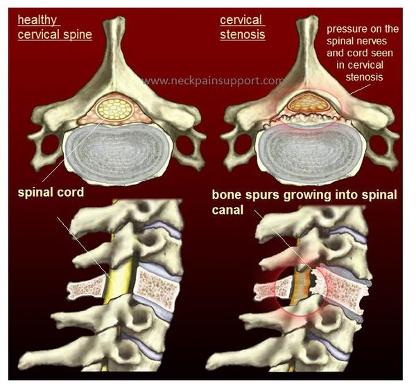 Spinal Stenosis and Neck Arthritis What is the Connection