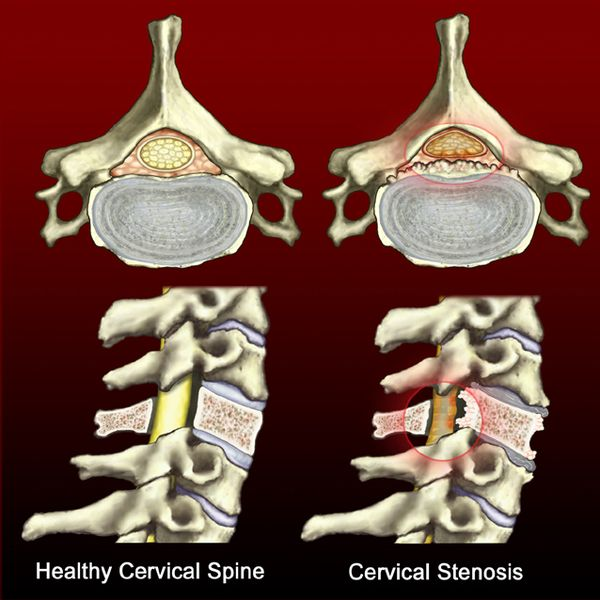 Whats Worse  Stenosis or a Herniated Disc Neck Pain