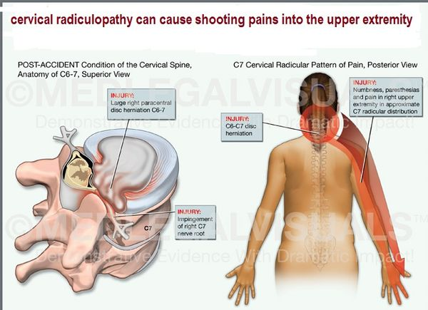 They Told Me I Have Cervical Radiculopathy What Is That