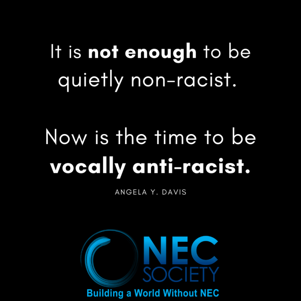 Now is the time to be vocally anti-racist