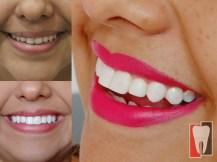 diseño de sonrisa barranquilla 006