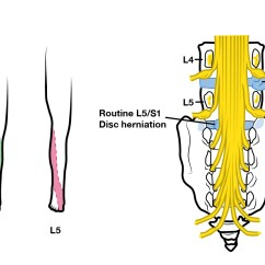L4 Nerve Pain Diagram Trane Voyager 3 Wiring List Of Synonyms And Antonyms The Word L5 Radiculopathy