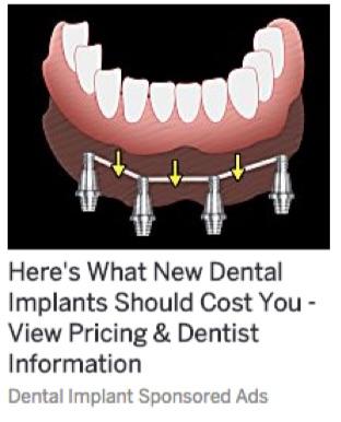 dental-implants-clickbait-ad