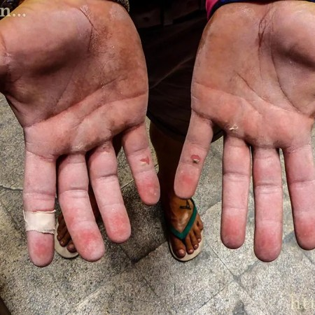 Kyl's hands after