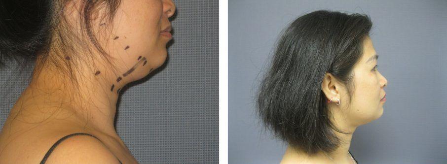 Female Neck Liposuction – 30 minute procedure