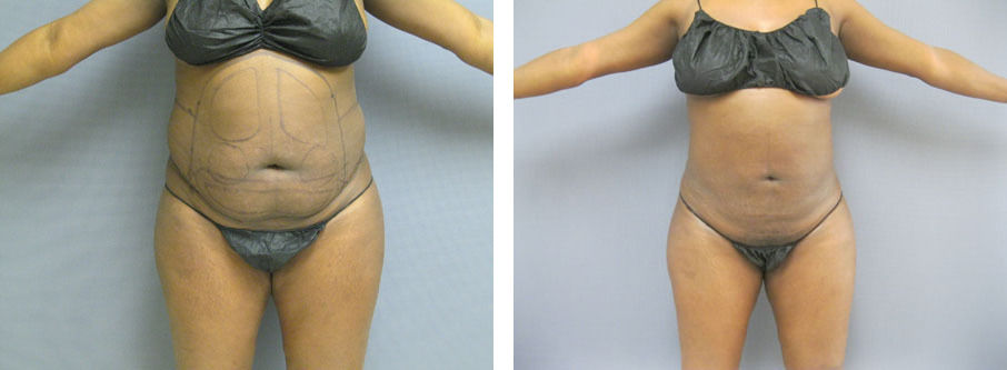 Female Abdomen & Waist