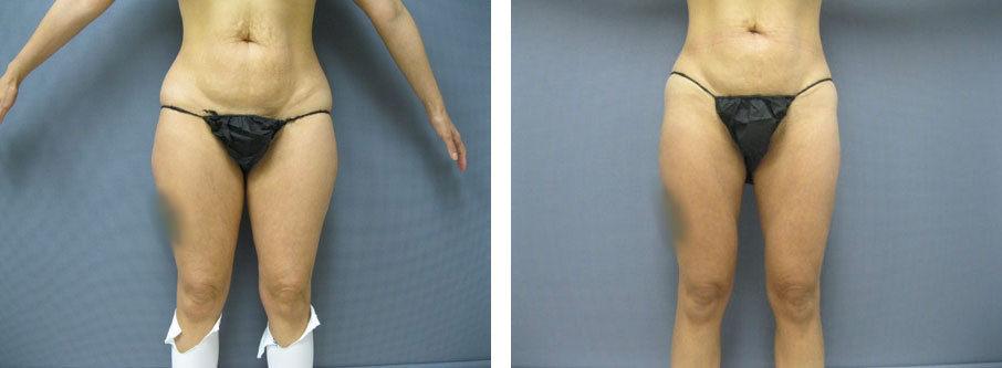 Female Inner & Outer Thigh