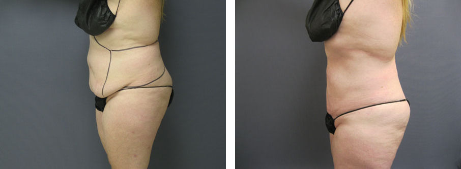 Skin Retraction with Minimally Invasive Liposuction & Venus Legacy Treatments
