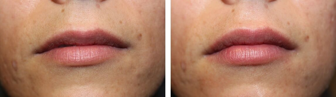 Conservative lip enhancement with Restylane Silk for a gentle aesthetic enhancement