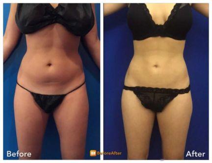 Abdominal Liposuction Through the Belly Button