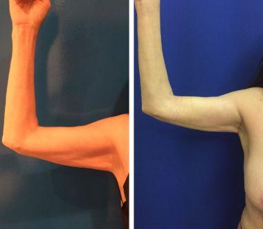 Hi Definition Arm Liposuction with Mini (Armpit Scar only) Arm Lift