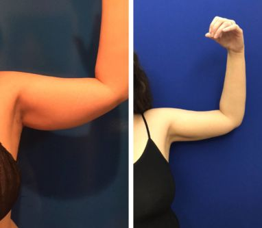 Minimally Invasive Arm Liposuction