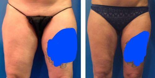 Vaser Inner and Outer Thigh Liposuction