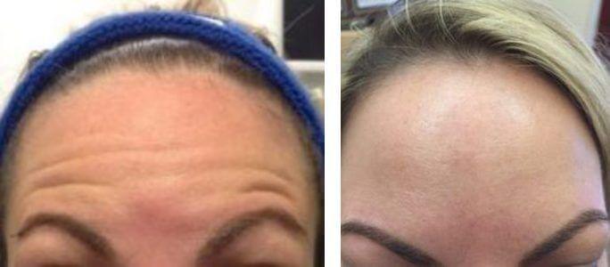 Preventative low-dose botox in a young 30yo woman