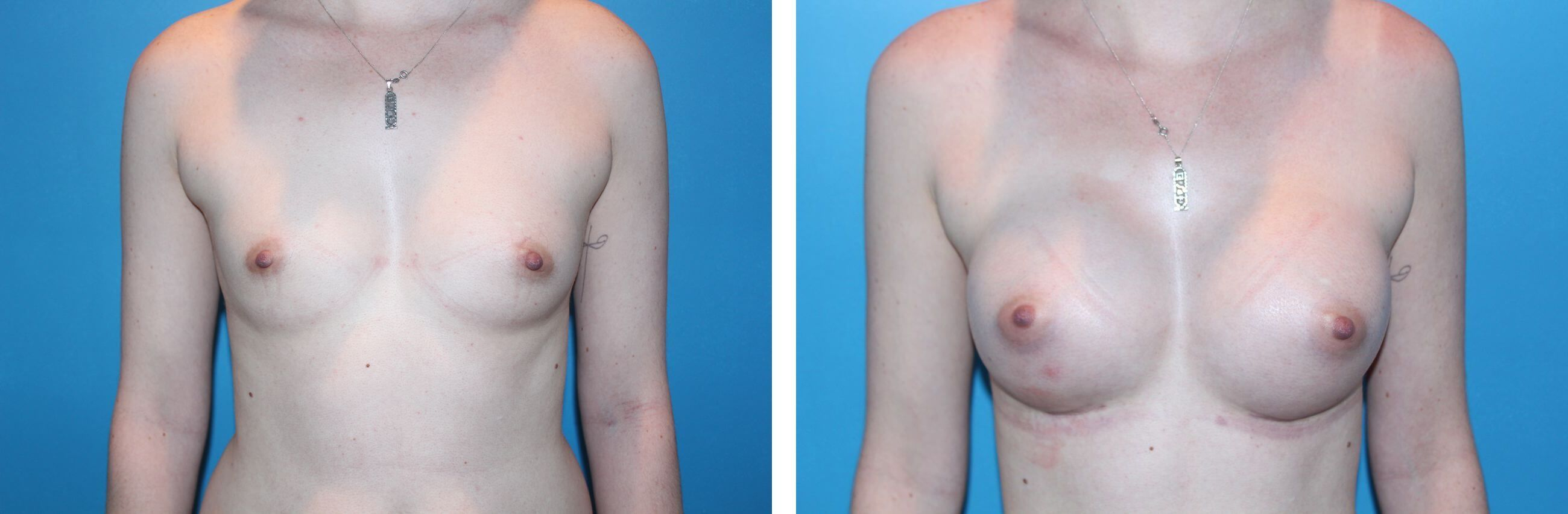 300cc Breast Augmentation