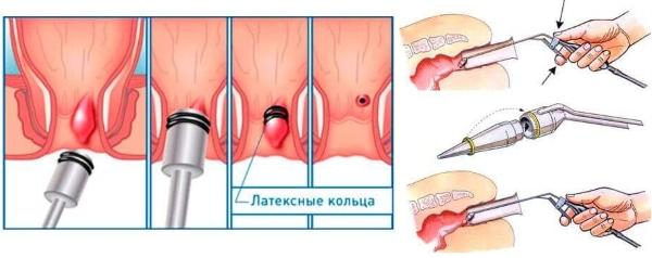 care sunt corpurile varicoase ale micului pelvis varicoză osteopat