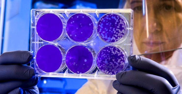 Tanulmány: A Lambda-variáns ellenállóbb a vakcinákkal szemben