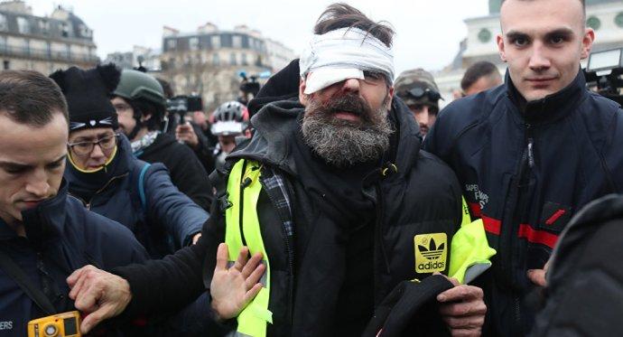 Demokrácia liberáliséknál: Macron rendőrei is gyakorolják a szemkilövést