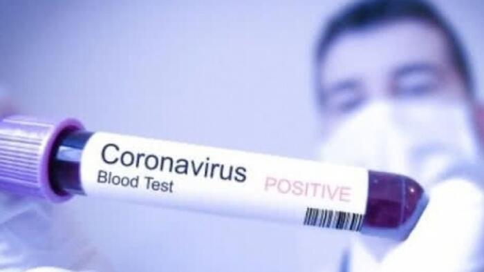 155 új fertőzöttet találtak Magyarországon