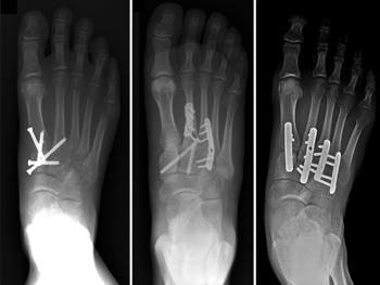 lábközépcsont törés utáni rehabilitáció a hamis ízületek kezelése