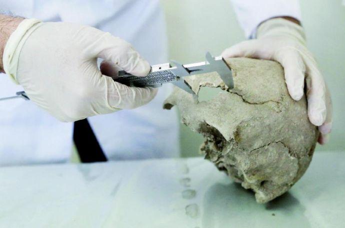 Elképesztő műtét nyomaira bukkantak