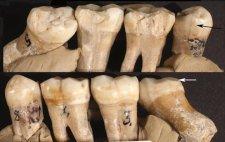 A neandervölgyiek már 130 ezer évvel ezelőtt is megpróbálkoztak a fogászattal