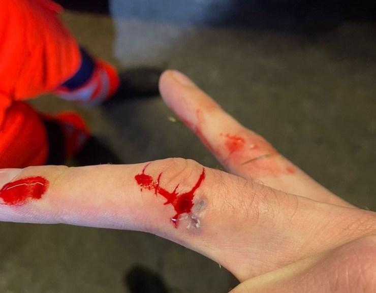 Orron harapta a barátját, majd belekapott egy rendőr ujjába is