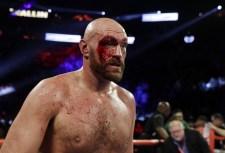 Tyson Fury vérző fejjel is megőrizte veretlenségét