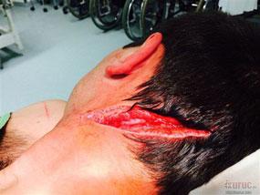 A hatóság szerint az itt látható sérülés nyolc napon belül gyógyul – a cigány elkövetőt másnap szabadon engedték