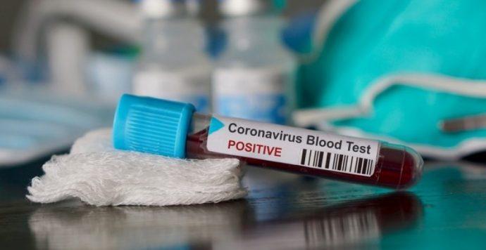 A koronavírus újabb, könnyen felismerhető tünete bukkant fel
