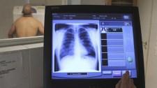Önkormányzati politikusok fenyegették meg az óbudai tüdőszűrő munkatársait
