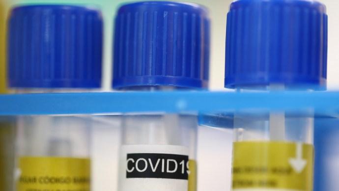 """Elkészült és hatékony a magyar koronavírus-gyógyszer """"fapados"""" verziója"""