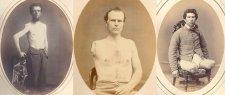 Megrázó portrék csonka végtagú polgárháborús katonákról