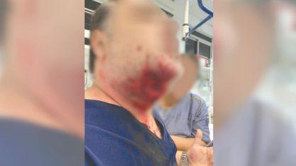 Paciente morde médico na jugular em hospital do interior de SP
